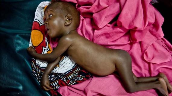 Malnutrition affects children's cognitive development