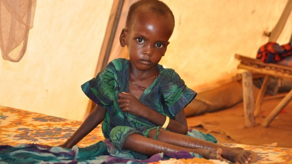 Alterations in physical development due to malnutrition