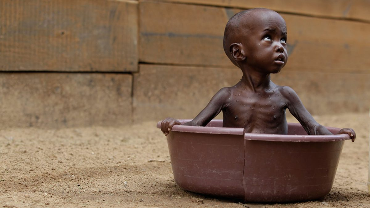 Child malnutrition in Africa current situation and real photos